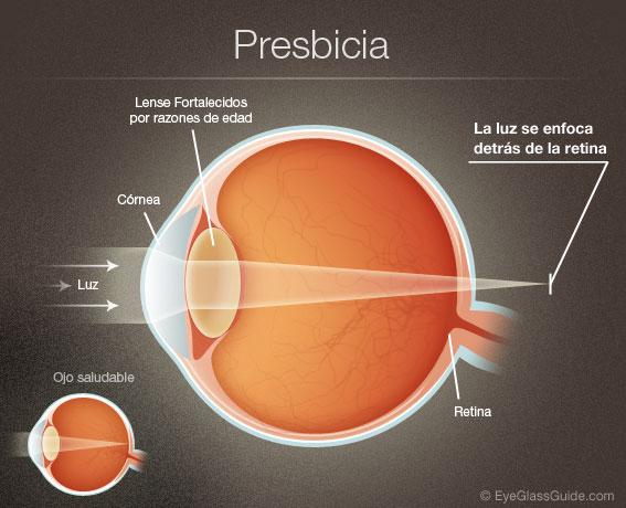 Presbicia02