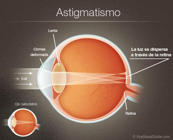 astigmatism01