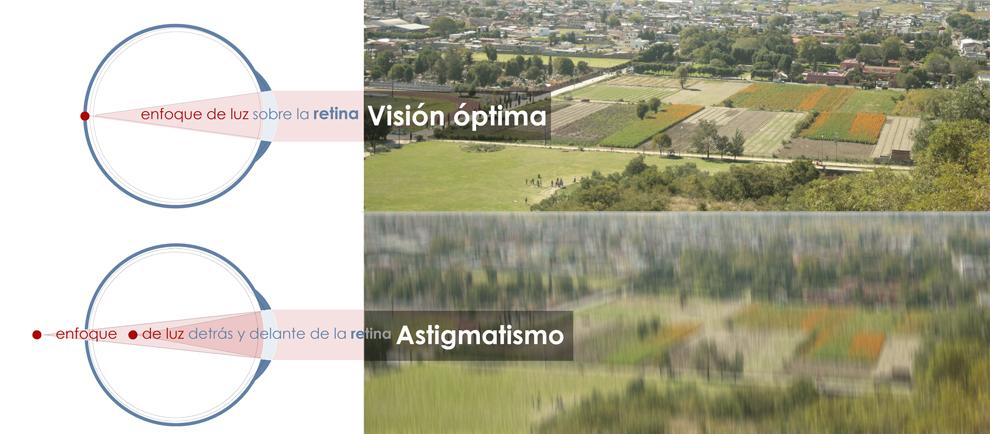 astigmatism02