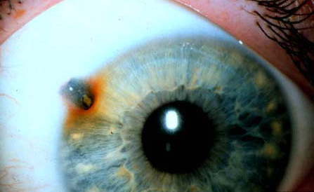 cuerpo-extrano-corneal01