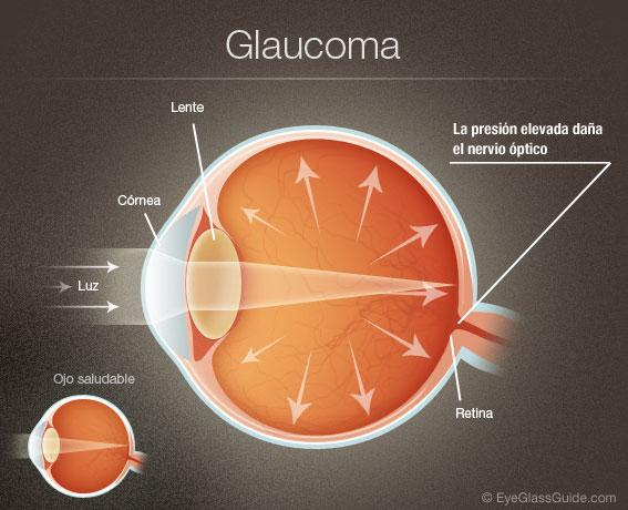 glaucoma04