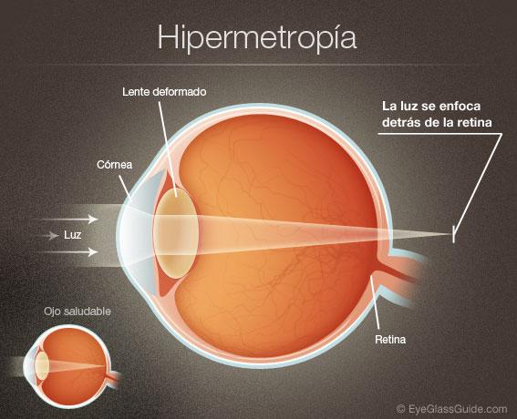 hipermetropia01